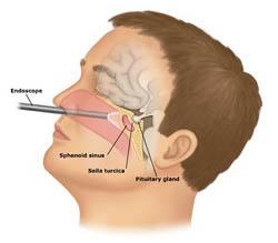 pituitary-adenoma