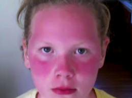 аллергия на солнце на лице у детей