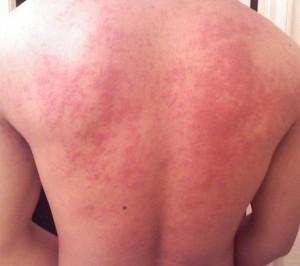 аллергия на солнце на спине фото