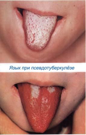 Псевдотуберкулез малиновый язык