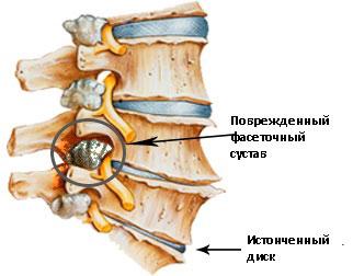 повреждение фасеточного сустава