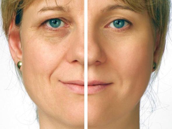 Эффект от домашней маски от морщин