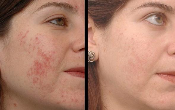 Угревая сыпь до и после лечения