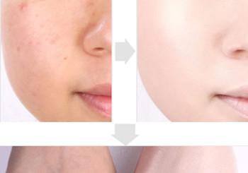 Половина лица с тональным кремом